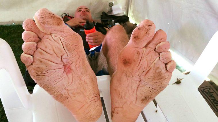 pieds en mauvais état